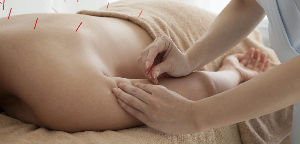 Acupuncture May Lower the Risk of Epilepsy in Stroke Patients