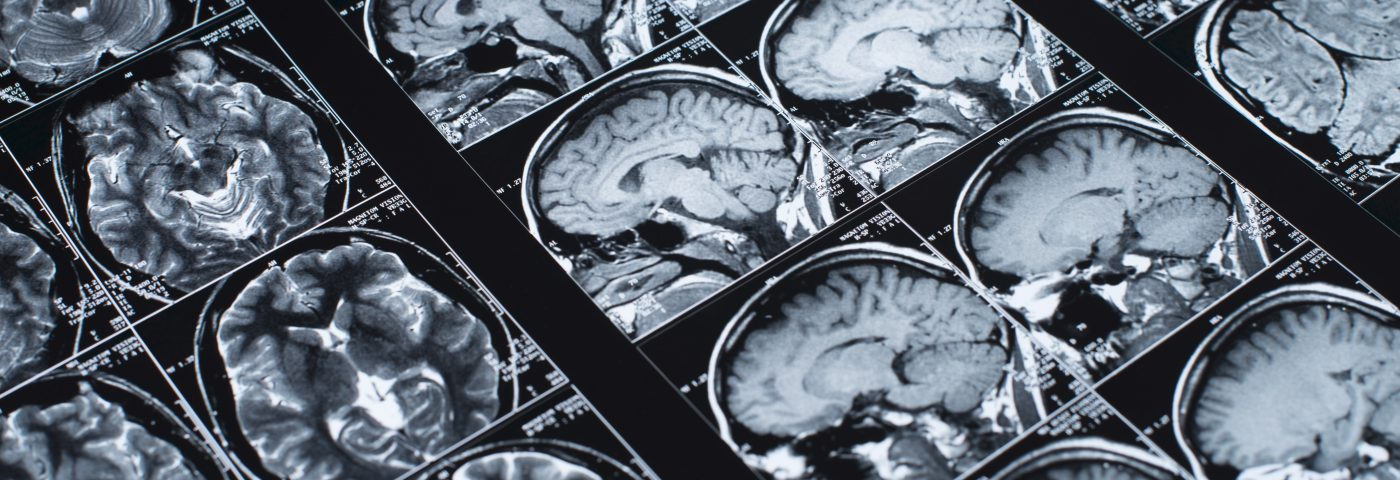 Microscopic Brain Changes in Temporal Lobe Epilepsy Might Impact Cognition, Study Finds